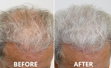 Grey Hair Before and after